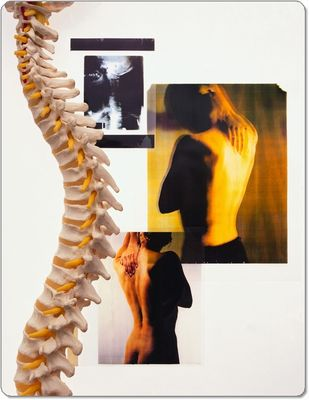 背骨の矯正だけがカイロプラクティックではありません。
