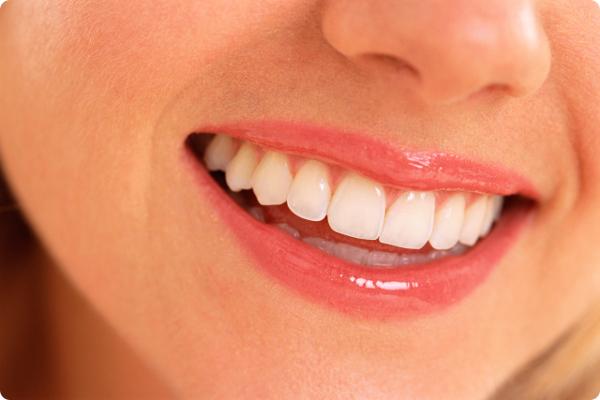セフルケアでは困難な歯石の除去